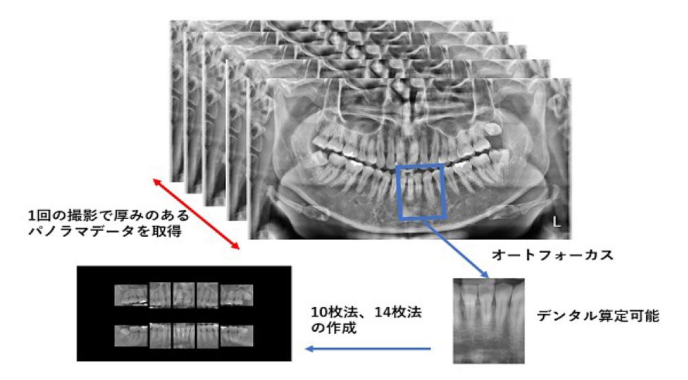 革新的なIT技術によりパノラマからデンタル画像