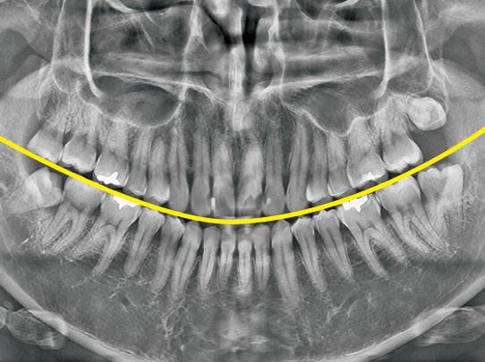 黄色いラインを合わせます